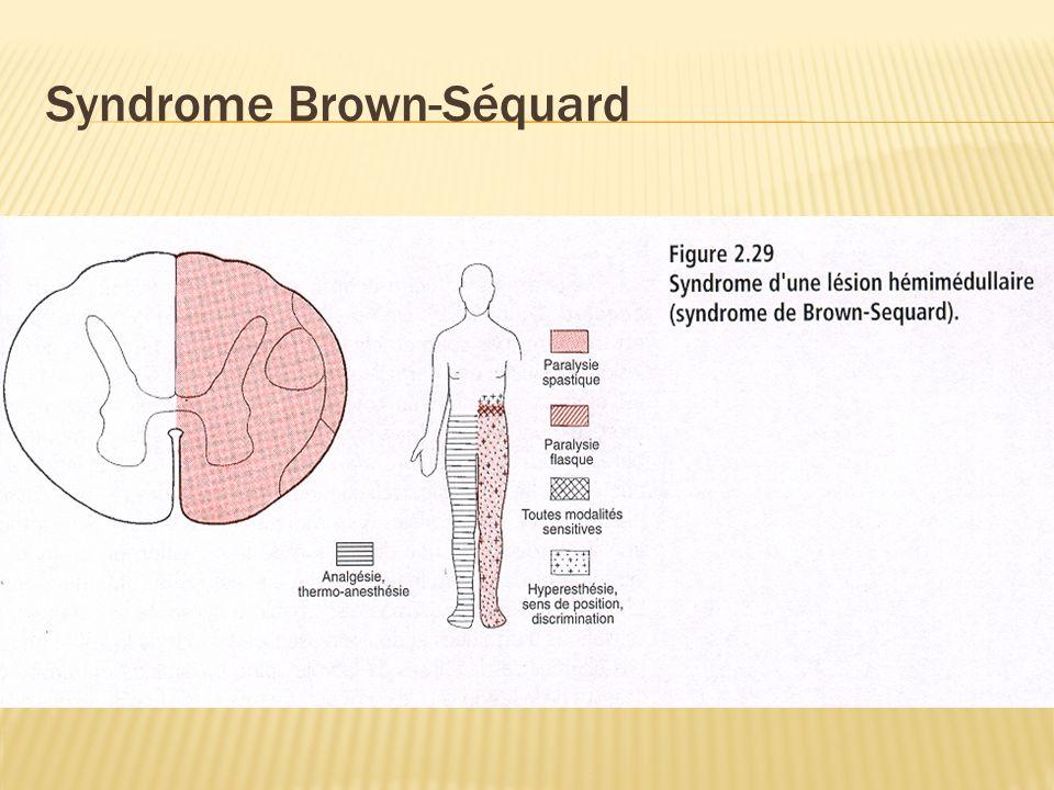 Syndromes médullaires Partiels 1- Syndromes segmentaires 1- Syndromes segmentaires= Atteinte substance grise Ventral Lésion corne antérieure syndrome moteur périphérique Aigue: PAA, infarctus A.
