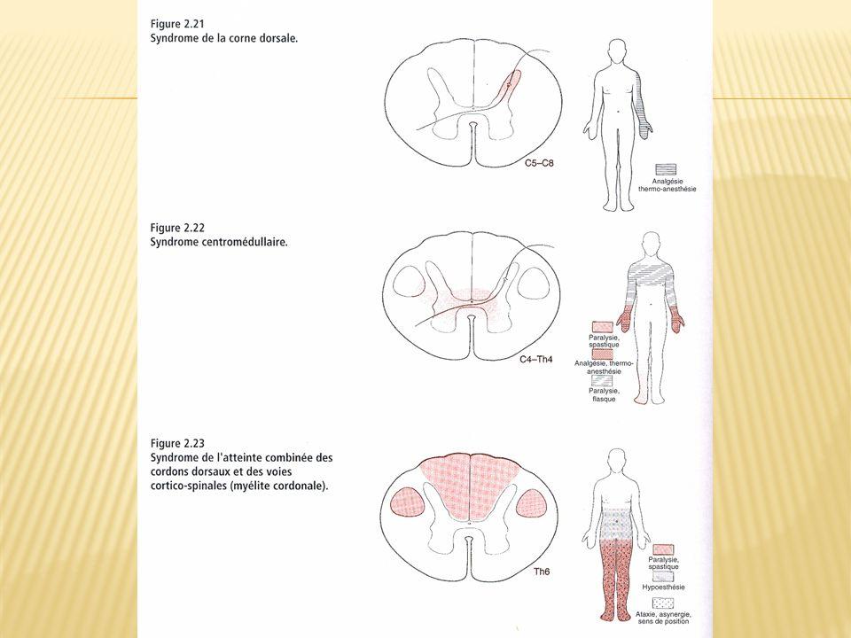 Syndromes médullaires Partiels 2- Syndromes cordonaux 2- Syndromes cordonaux= Atteinte substance blanche Syndrome cordonal postérieur Douleurs cordonales: fulgurantes, térébrantes, constrictives, toux, éternuement Sensibilité dissociation tabétique: abolition profonde et épicritique; Th-A conservée Tabès, infarctus spinal postérieur, myelopathies post-radiques, neuropathie sensitive D-B Syndrome cordonal antérolatéral Douleurs type brûlures, hyperpathie Syndrome pyramidal homolatéral + anesthésie Th-A controlatéral Causes : SEP ( IRM cérébrale + PES + LCR inflammatoire) Syndrome sclérose combinée moelle Atteinte simultanée cordons post.