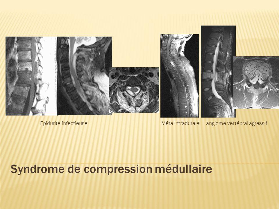 Ischémie médullaire Par lésion artérielle athéromateuse, embolique, disséquqnte, inflammatoire Infarctus transverse total Paraplégie ou quadriplégie anesthésie complète en dessous lésion rétention urinaire Infarctus spinal antérieur Paraplégie ou quadriplégie Troubles sensibilité th-A, +/- tact ; Conservation S.