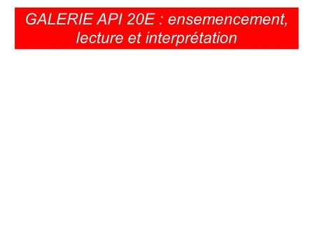 GALERIE API 20E : ensemencement, lecture et interprétation.