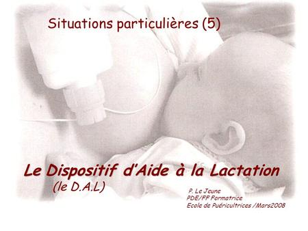 Le Dispositif d'Aide à la Lactation