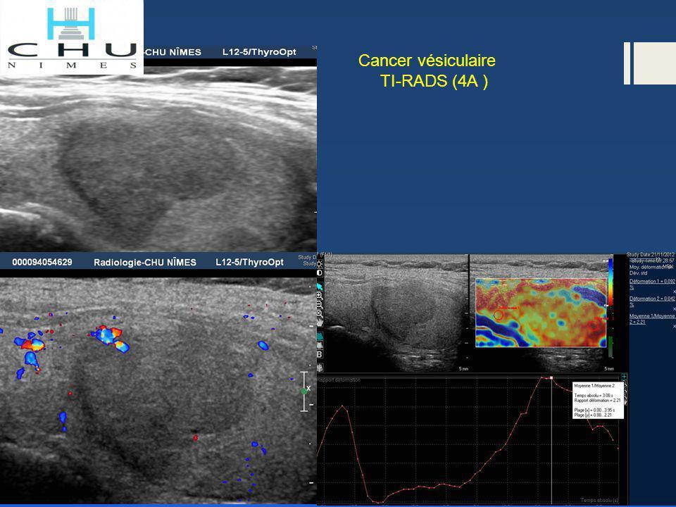 Suspect de malignité à la cytologie bénin à l'anapath définitive TI-RADS 4B TI-RADS 4A