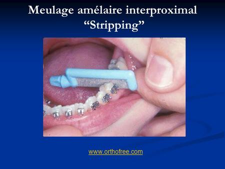 "Meulage amélaire interproximal ""Stripping"""