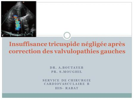 Service de chirurgie cardiovasculaire B