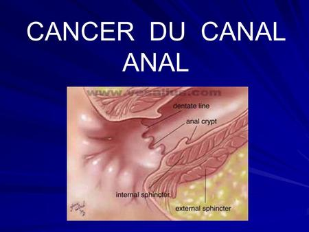 CANCER DU CANAL ANAL.