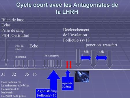 Cycle court avec les Antagonistes de la LHRH J1 J2J5 FSH ou HMG 1 injection/j Echo FSH ou HMG J6 Agoniste3mg Follicule> 15 Déclenchement de lovulation.