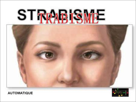 STRABISME AUTOMATIQUE.