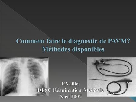 Comment faire le diagnostic de PAVM? Méthodes disponibles