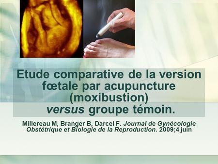 Etude comparative de la version fœtale par acupuncture (moxibustion) versus groupe témoin. Millereau M, Branger B, Darcel F. Journal de Gynécologie Obstétrique.