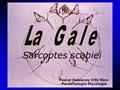 Sarcoptes scabiei Pascal Delaunay CHU Nice Parasitologie-Mycologie.