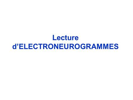Lecture d'ELECTRONEUROGRAMMES