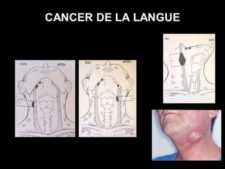 CANCER DE LA LANGUE T.N.M.