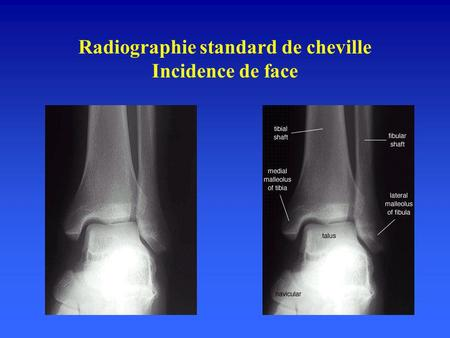Radiographie standard de cheville Incidence de face.
