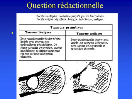 Question rédactionnelle