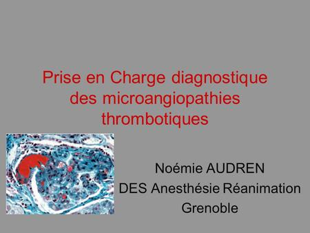 Prise en Charge diagnostique des microangiopathies thrombotiques