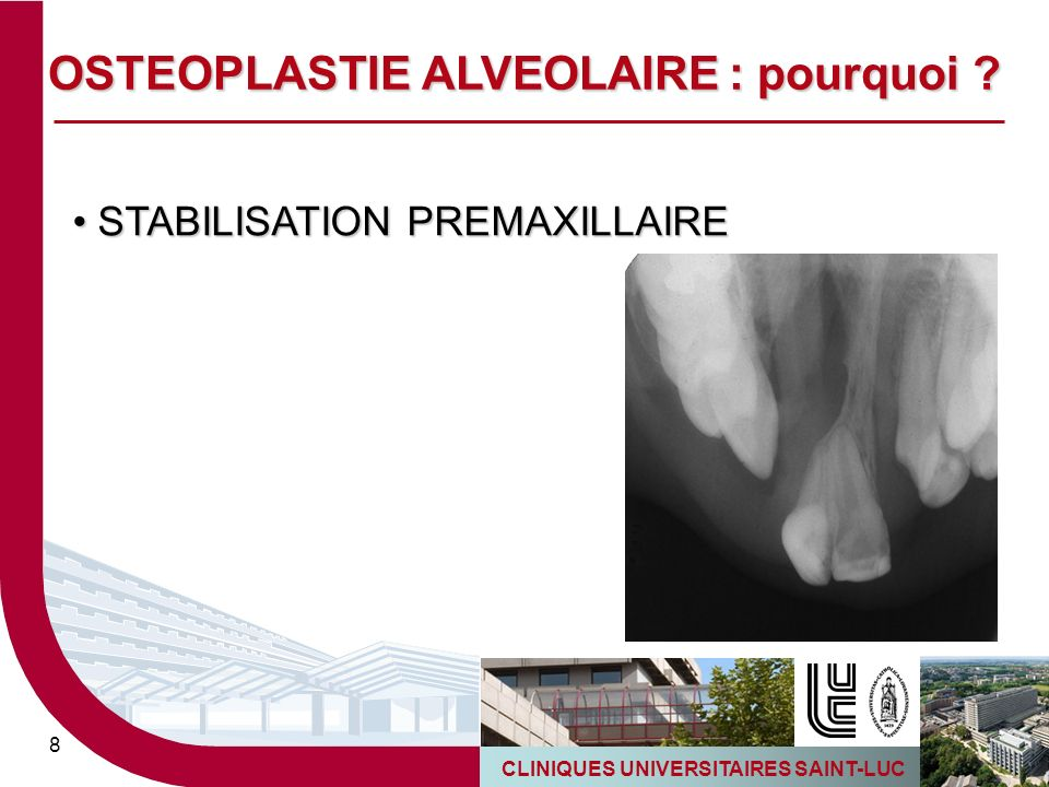 CLINIQUES UNIVERSITAIRES SAINT-LUC 9 REHABILITATION PROTHETIQUE (implants) REHABILITATION PROTHETIQUE (implants) OSTEOPLASTIE ALVEOLAIRE : pourquoi ?