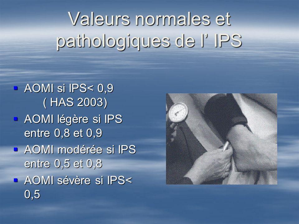 IPS et mortalité cardiovasculaire et globale IPS et mortalité cardiovasculaire et globale META ANALYSE ( 16 études ) META ANALYSE ( 16 études ) Sujets indemnes de maladie cardio vasculaire Suivi = 10 ans Mortalité cardio vasculaire à 10 ans = 20 % si IPS<0,9 versus 20 % si IPS<0,9 versus 4,4 % si IPS entre 1,1 et 1,4 4,4 % si IPS entre 1,1 et 1,4 ABI collaboration.