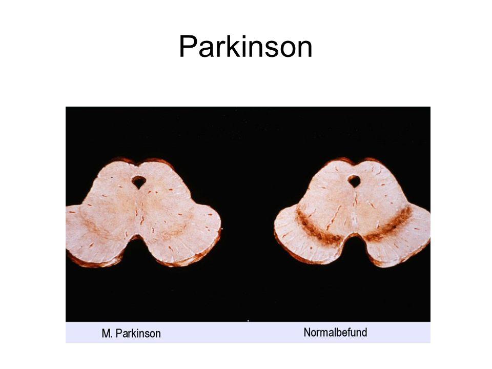 Applications Cliniques : –Étude des conductions pyramidales : Permet le diagnostique différentiel entre le syndrome parkinsonien et la maladie de parkinson.