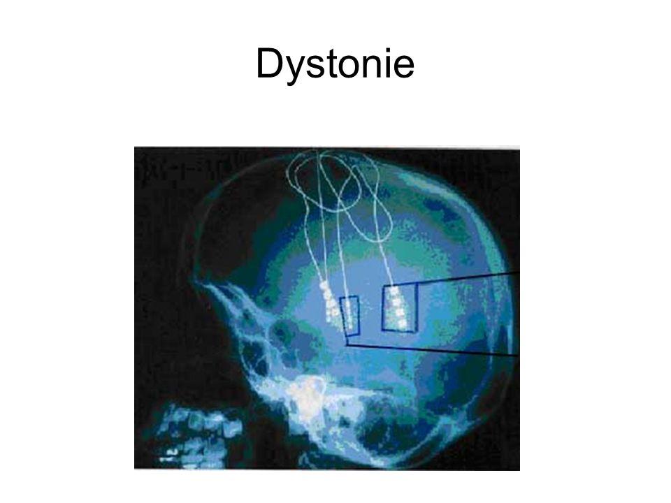 Conclusion Les techniques détude de conductions des voies pyramidales, dexcitabilité corticale permettent lexploration diagnostique et physiopathologique, tandis que la SMTr offre la possibilité daméliorer les patients.