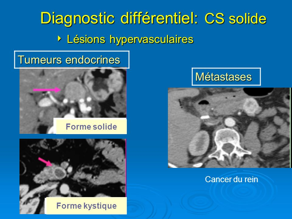 CYSTADENOME SEREUX Traitement Abstention thérapeutique:Surveillance Abstention thérapeutique:Surveillance Chirurgie si: Chirurgie si: -symptômes(douleur,syndrome de masse) -symptômes(douleur,syndrome de masse) -complications (ictère,PA) -complications (ictère,PA) -Doute diagnostic -Doute diagnostic