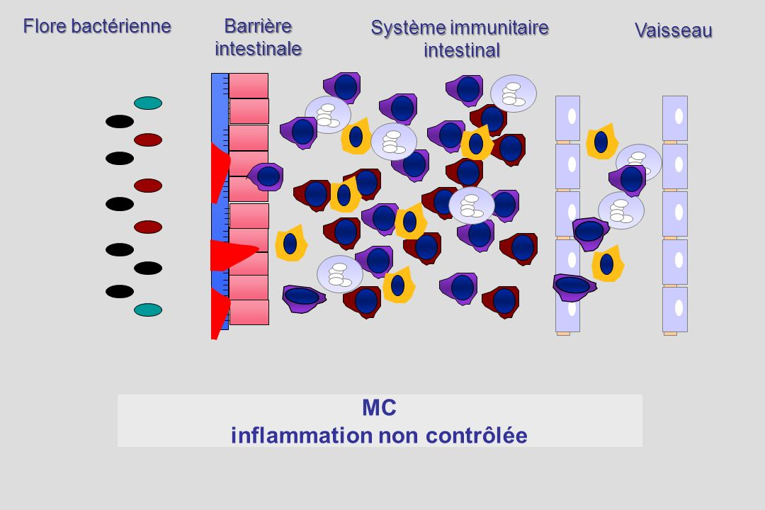 Activation locale du système immunitaire Déséquilibre entre cytokines pro- et anti-inflammatoires Déséquilibre entre cellules effectrices et régulatrices