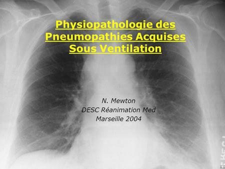 N. Mewton DESC Réanimation Med Marseille 2004 Physiopathologie des Pneumopathies Acquises Sous Ventilation.