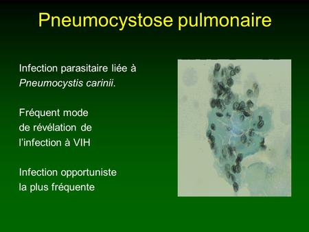 Pneumocystose pulmonaire Infection parasitaire liée à Pneumocystis carinii. Fréquent mode de révélation de linfection à VIH Infection opportuniste la plus.