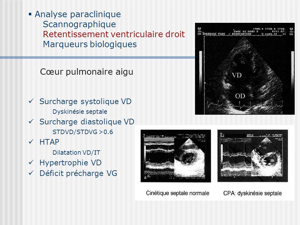 Analyse paraclinique Scannographique Retentissement ventriculaire droit Marqueurs biologiques Des doutes … Mortalité Définition dysfonction VD