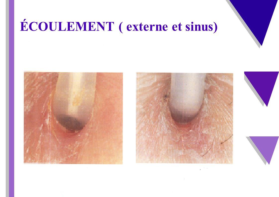 Infection d émergence Infection d émergence Rougeur Chaleur Induration Peau tendue Douleur Écoulement Suintement