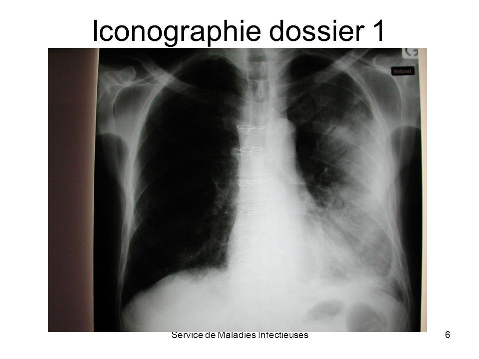 Service de Maladies Infectieuses7 Résumé de lhistoire clinique 1 Homme de 54 ans Antécédents : tabagisme depuis 30 ans sinusite -2 mois traitée AB Syndrome septique sans signe de gravité –Fièvre 39°8, frissons –CRP 288 mg/l, fibrinogène 5.8 g/l –GB 18600/mm3 Atteinte pulmonaire –toux, douleurs thoraciques G, crépitants champs pulmonaire G –sans signe de gravité : pas de cyanose