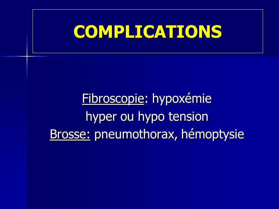 NETTOYAGE DU MATERIEL Mettre des gants non stériles Essuyer la partie externe du fibroscope avec une compresse d eau distillée stérile Décontaminer et désinfecter le fibroscope selon le protocole établi par le service