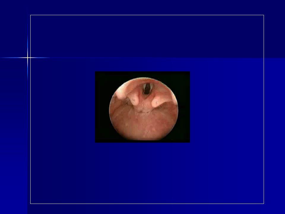 BUTS ET INTERÊTS 1 - Diagnostic Visualisation danomalies anatomiques, sténoses, tumeurs, fistules, encombrement Visualisation danomalies anatomiques, sténoses, tumeurs, fistules, encombrement Réalisation de biopsie Réalisation de biopsie Réalisation dun lavage broncho- alvéolaire (LBA) Réalisation dun lavage broncho- alvéolaire (LBA)