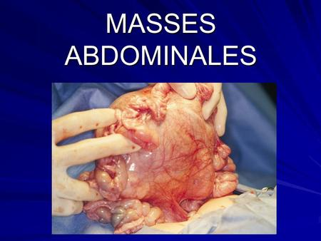 MASSES ABDOMINALES.