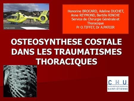 OSTEOSYNTHESE COSTALE DANS LES TRAUMATISMES THORACIQUES