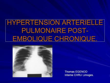 HYPERTENSION ARTERIELLE PULMONAIRE POST- EMBOLIQUE CHRONIQUE. Thomas EGENOD Interne CHRU Limoges.
