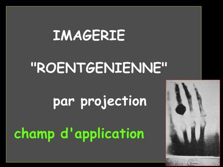 IMAGERIE ROENTGENIENNE par projection champ d'application.