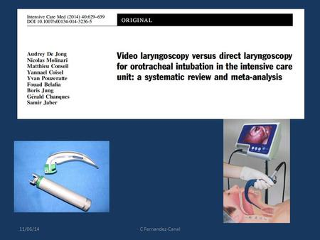 11/06/14C Fernandez-Canal. Contexte Réanimation: Augmentation intubation difficile (ID) et complications Video laryngoscopes (VL): améliore le management.