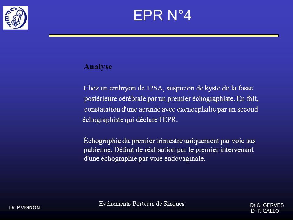 EPR N°4Analyse. Chez un embryon de 12SA, suspicion de kyste de la fosse. postérieure cérébrale par un premier échographiste. En fait,