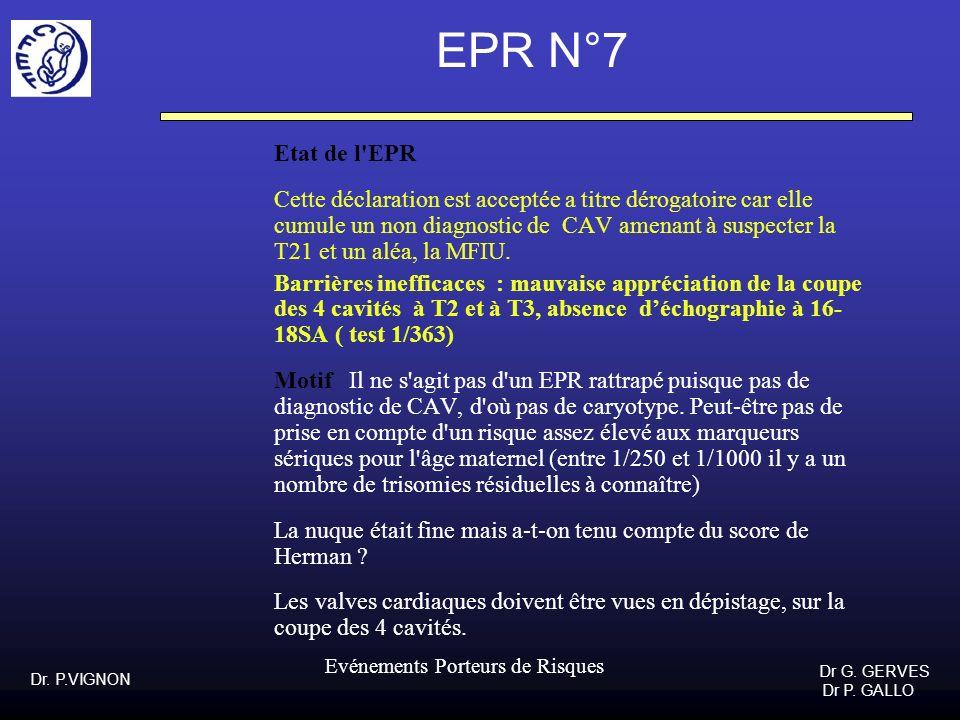 EPR N°7 Etat de l EPR.
