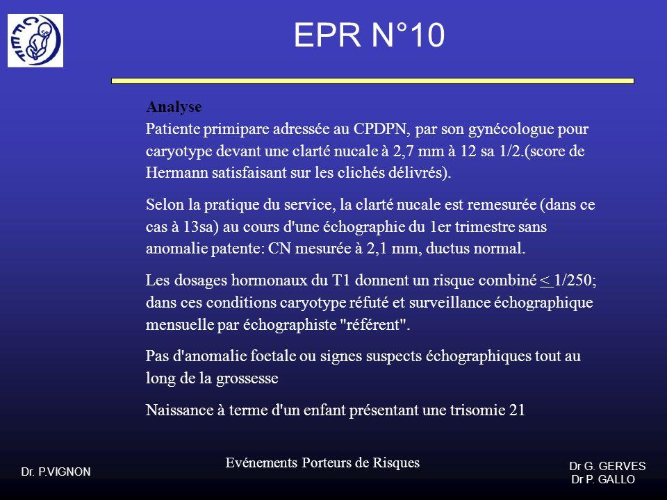 EPR N°10Analyse. Patiente primipare adressée au CPDPN, par son gynécologue pour. caryotype devant une clarté nucale à 2,7 mm à 12 sa 1/2.(score de.