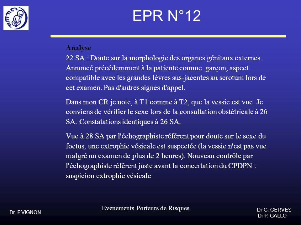 EPR N°12Analyse. 22 SA : Doute sur la morphologie des organes génitaux externes. Annoncé précédemment à la patiente comme garçon, aspect.