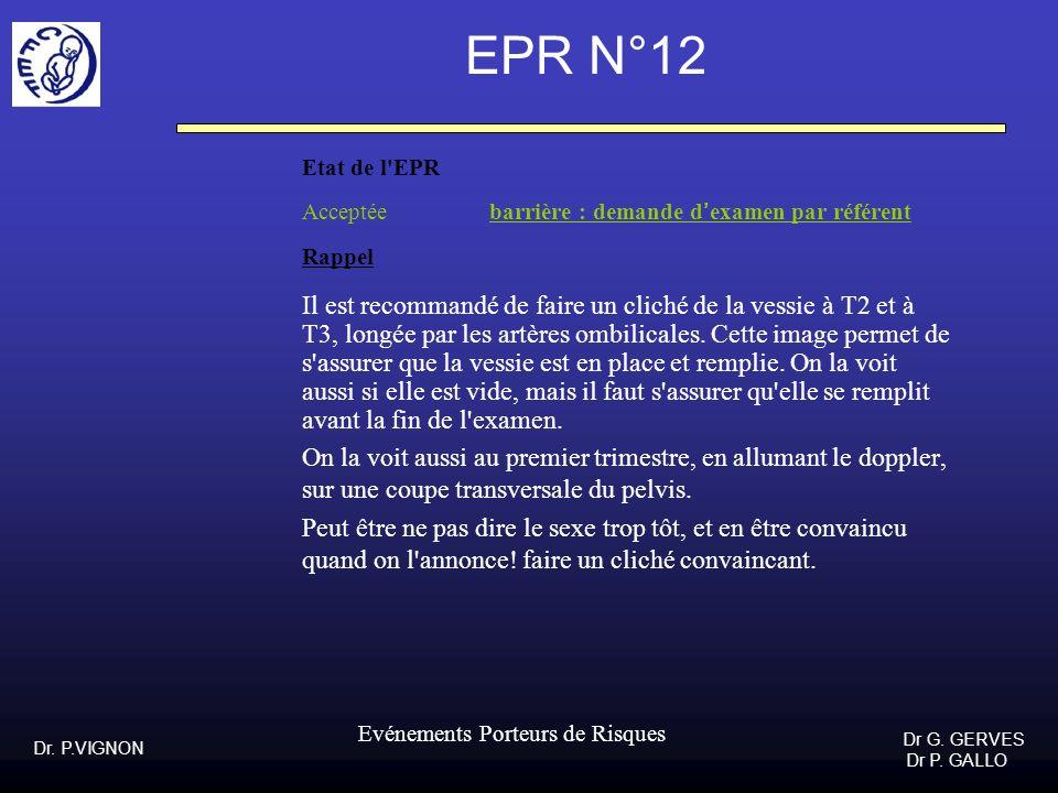 EPR N°12 Etat de l EPR. Acceptée barrière : demande d'examen par référent. Rappel.