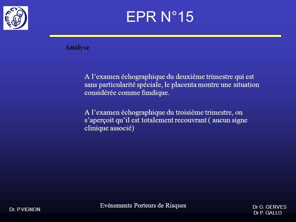 EPR N°15 Analyse.