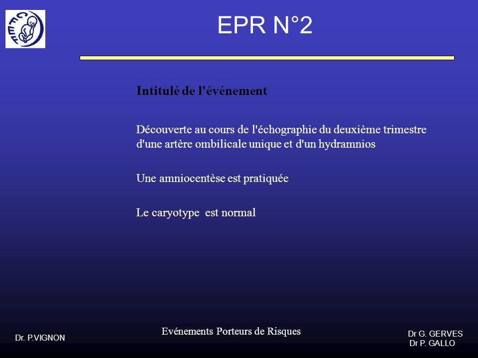 EPR N°2 Intitulé de l événement