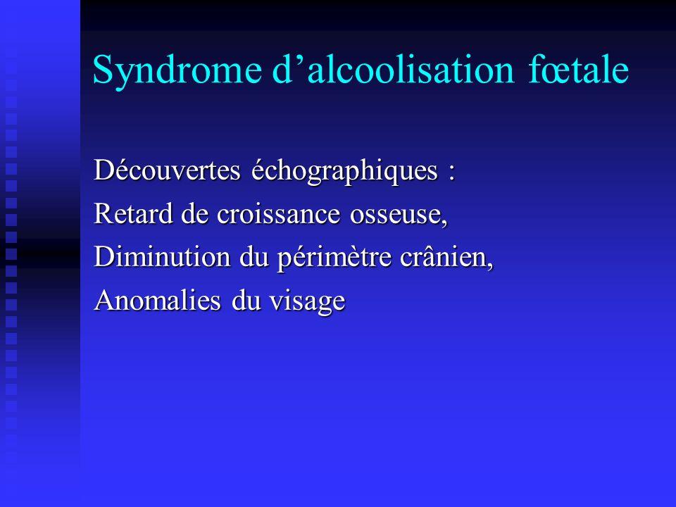 Syndrome d'alcoolisation fœtale