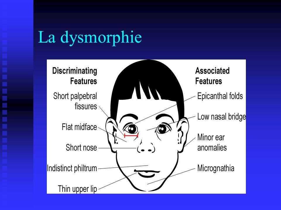 La dysmorphie