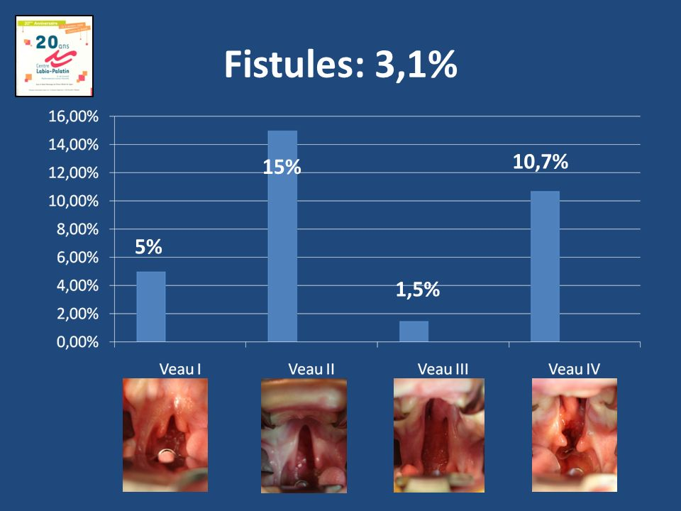 Fistules: 3,1% 10,7% 15% 5% 1,5%