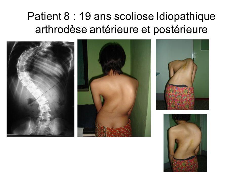 Patient 8 : 19 ans scoliose Idiopathique arthrodèse antérieure et postérieure
