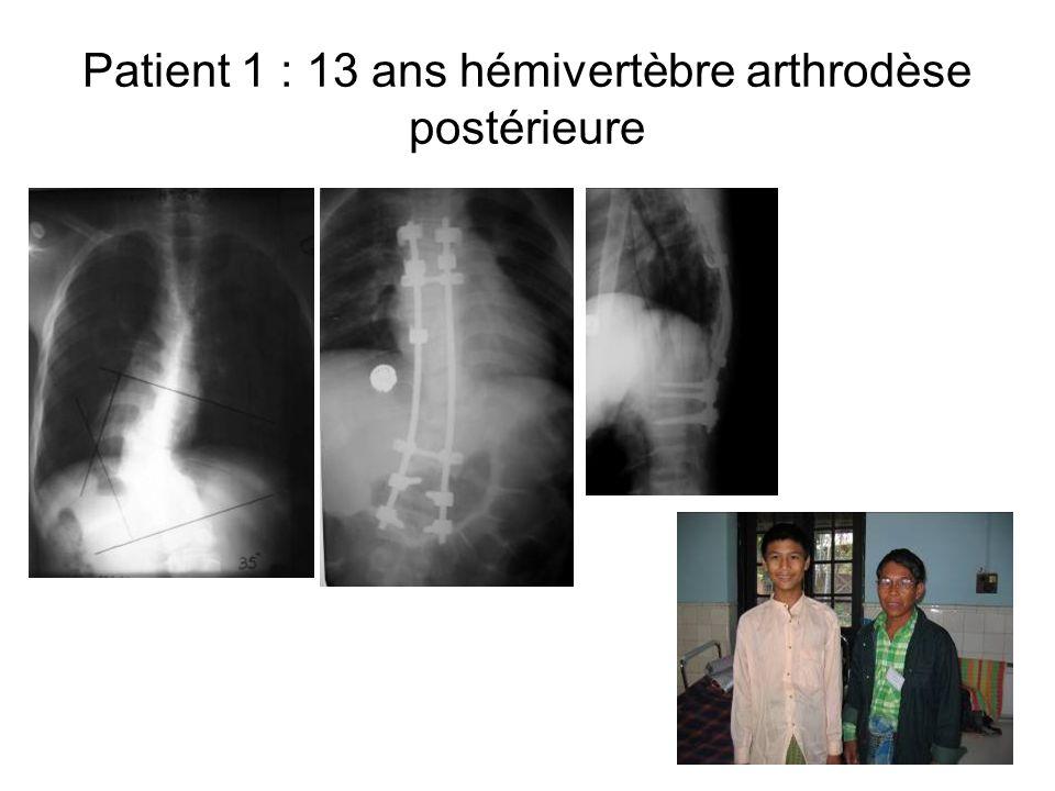 Patient 1 : 13 ans hémivertèbre arthrodèse postérieure