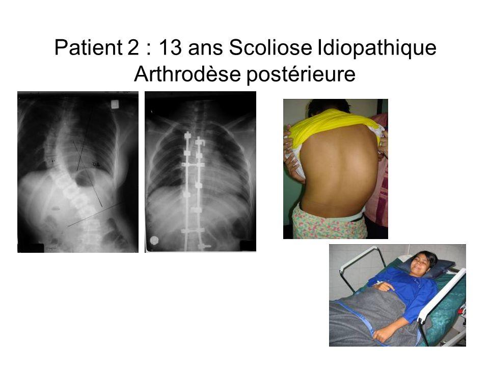 Patient 2 : 13 ans Scoliose Idiopathique Arthrodèse postérieure